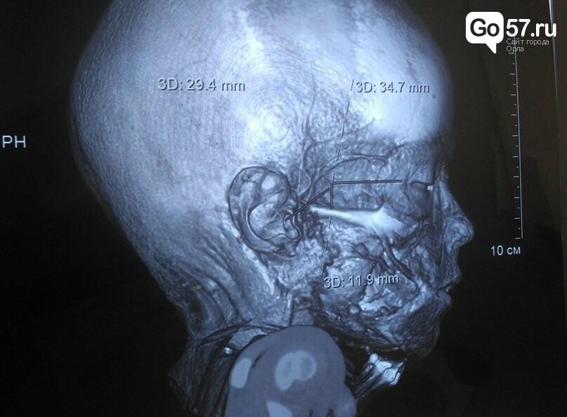 Нейрохирург орловского НКМЦ спас жизнь трехлетней девочке, фото-1